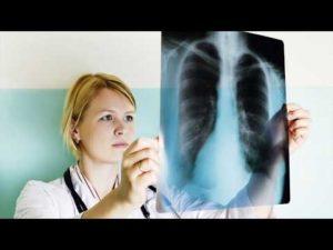 Подозрение на астму 2