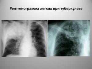 Результаты рентгена легких