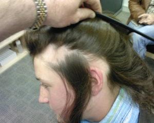 Выпадают и не растут волосы