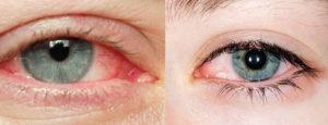Как предотвратить синдром сухого глаза?