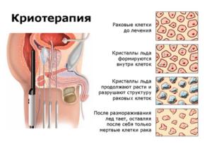 Криотерапия в лечении рака предстательной железы
