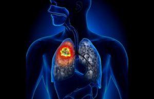 Рак легких: Лечение боли