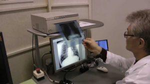 флюрографія