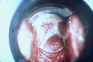 Беременность и трихомоноз