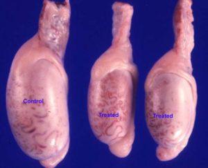 Гипотрофия яичка
