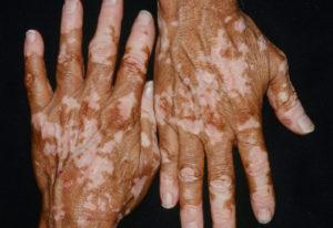 Симптомы болезни - нарушения пигментации кожи