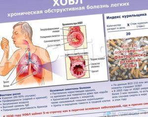 Что делать при болях за грудиной после гриппа и острого бронхита?