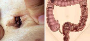 Проблемы с кишечником после родов!