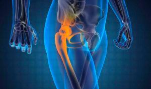 Симптомы болезни - боли в бедрах