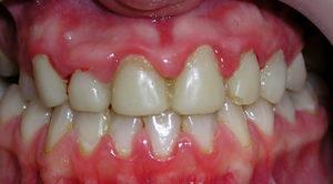 Симптомы болезни - зубные боли