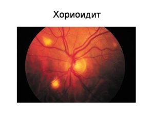 Клиника задних увеитов (хориоидиты и хориоретиниты)