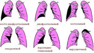 плевродиафрагмальные спайки слева