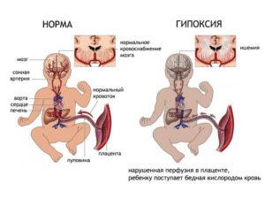 Гипоксия при беременности