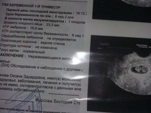 Эхографическое исследование в ранние сроки беременности