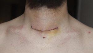 После операции на щитовидке  не восстанавливается голос