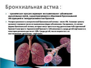 Подозрение на бронхиальную астму