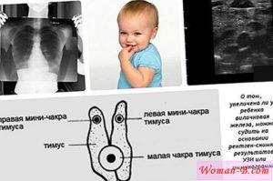 Гипоплазия вилочковой железы у годовалого мальчика.