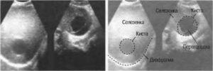 киста селезенки у новорожденного