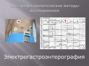 Электрофизиологические методы исследования (ЭФИ)