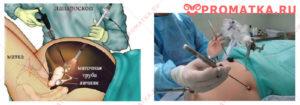 Лапароскопическая операция и эндометриоз