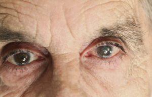 глаза непроизвольно смотрят вверх после приема препарата зипрека