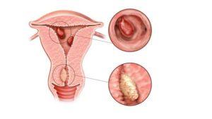 Полип В матке может оказаться беременностью?