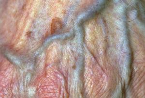 Симптомы болезни - боли в половых губах