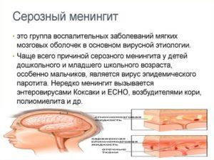 Часто задаваемые вопросы о вирусном (асептическом) менингите