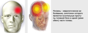 Курение – провокатор головной боли и мигрени