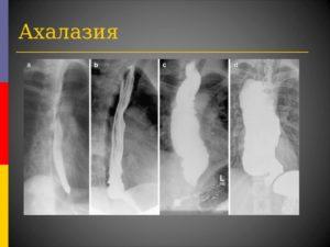 Ахалазия кардии (кардиоспазм) пищевода (продолжение...)