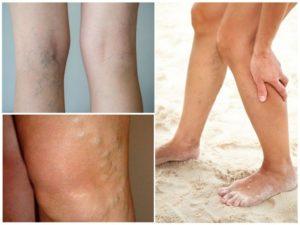 Симптомы болезней у женщин – Бедра