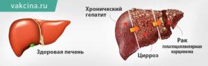 Гепатит С и рак печени