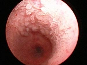 Пульсация в уретре, либо около уретры