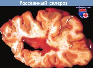 Рассеянный склероз: коррекция тремора при рассеянном склерозе