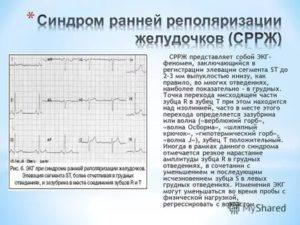 Симптомы болезни - нарушения реполяризации желудочков