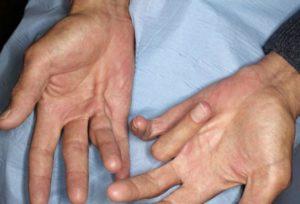Как избавиться от нейрогенной тетании