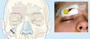 Онемение части лица после гайморита