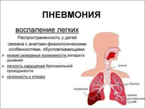Боли после пневмонии