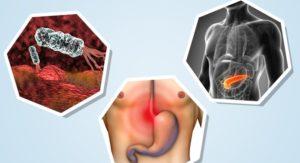 Расстройство желудка после орального секса