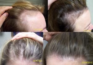 Выпадение волос после гриппа