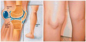 у ребенка болит нога сзади колена
