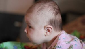 Скошенный затылок у ребёнка