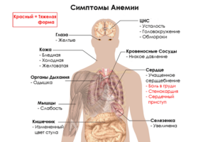 Каковы симптомы анемии?