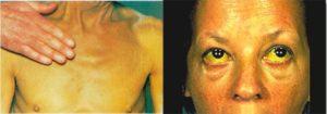 Поставлен диагноз гепатит С. Как дальше жить?