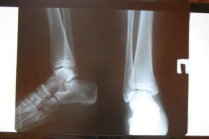 Прошу помощи и консультации апикальный перелом наружной лодыжки