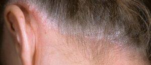 Белый налет на коже головы