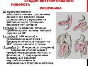 физиологическая эмбриональная кишечная грыжа