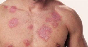 Симптомы заболеваний кожи