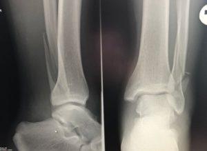 Осколочный перелом наружной лодыжки без смещения