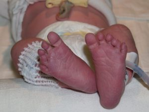Синеют ножки у ребенка